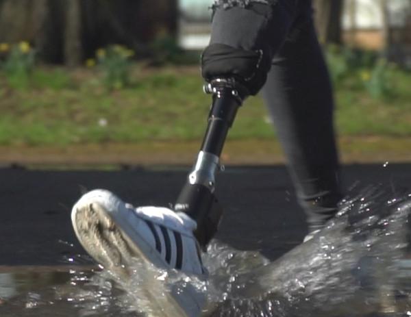 Бионическая стопа Elan от Blatchford