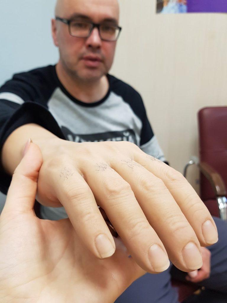 косметический протез Regal